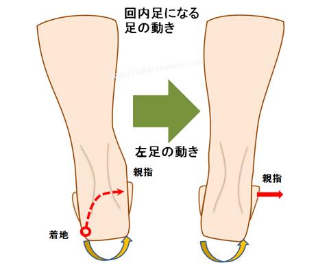 オーバープロネーションの人の足の動き