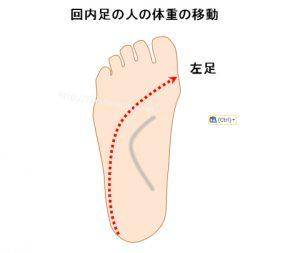 オーバープロネーションの人の足裏の体重の移動