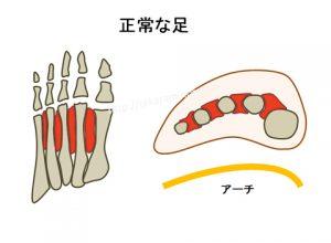 正常な人の足底の形