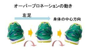 オーバープロネーションの足の動きを後ろから見た図
