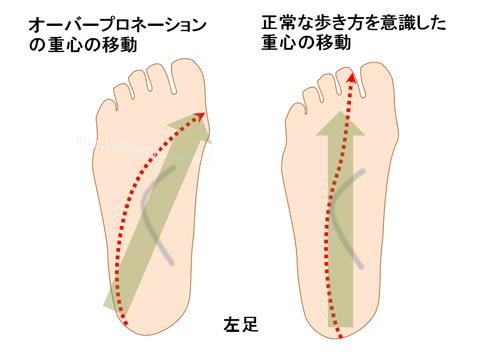 普通の人とオーバープロネーションの人の足裏の重心の移動