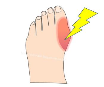 痛風になった足の親指