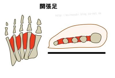 足の親指の付け根が痛い、これは痛風か外反母趾か、見分け方 ...