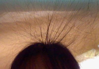 静電気で立っている髪