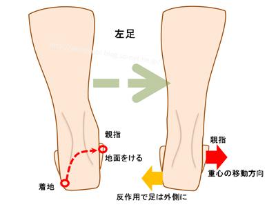 オーバープロネーションしているときの足の動き
