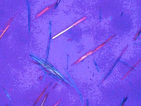 尿酸の結晶