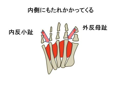 外反母趾と内反小趾になる状態