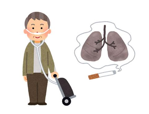 喫煙で慢性閉塞性肺疾患(COPD)になり酸素のチューブを装着している人