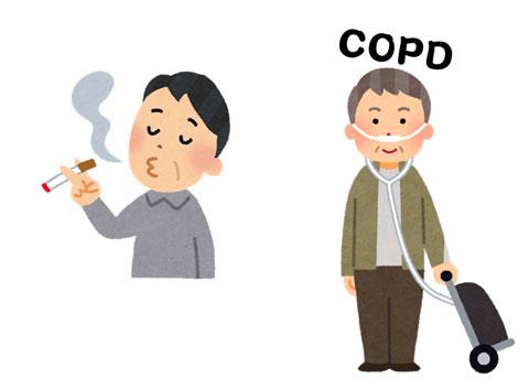 タバコを吸っていてCOPDになった高齢者